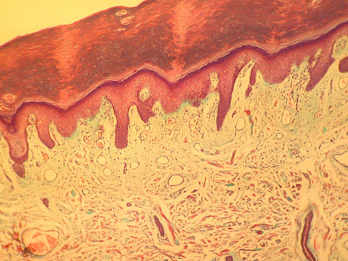 Microscopic view of a histology specimen of melanoma on human skin tissue