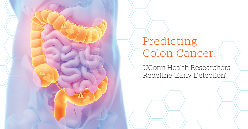 Colon cancer prediction