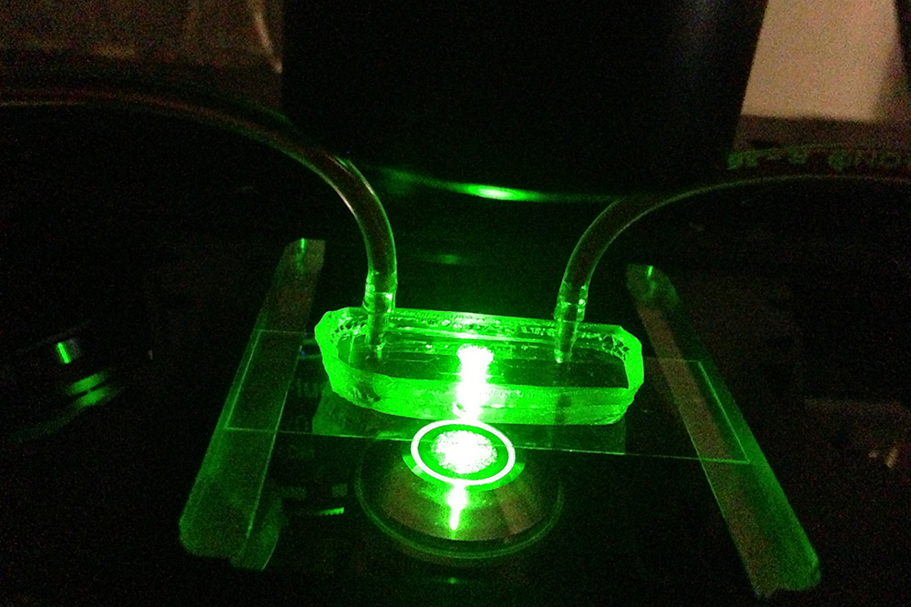 UConn researchers used a fluorescence microscope to illuminate a microfluidic device that simulates a blood vessel to observe and measure how particles of different sizes behave in the bloodstream.