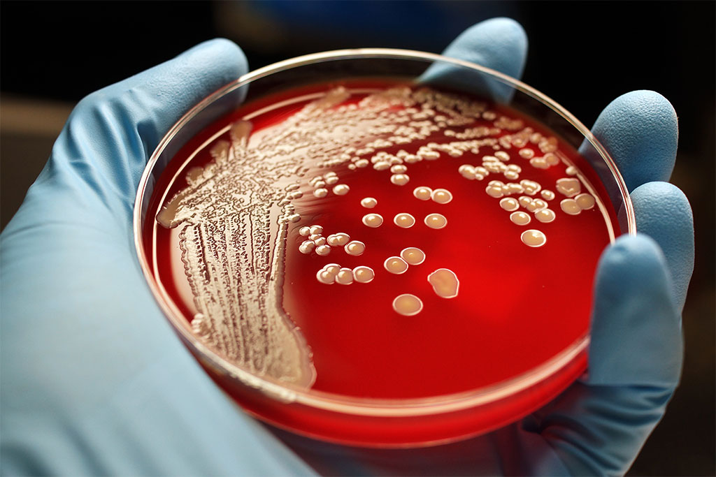 MRSA colonies are shown on a blood agar plate.