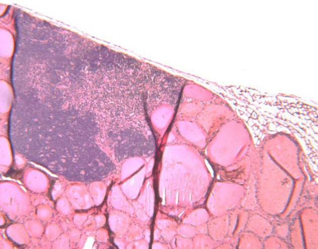 UConn Health research image of a parathyroid gland (darker) located on the thyroid gland (pink background) during a research experiment where scientists genetically engineered mouse models, knocking out the CDC73 gene to test if cancer would then develop.