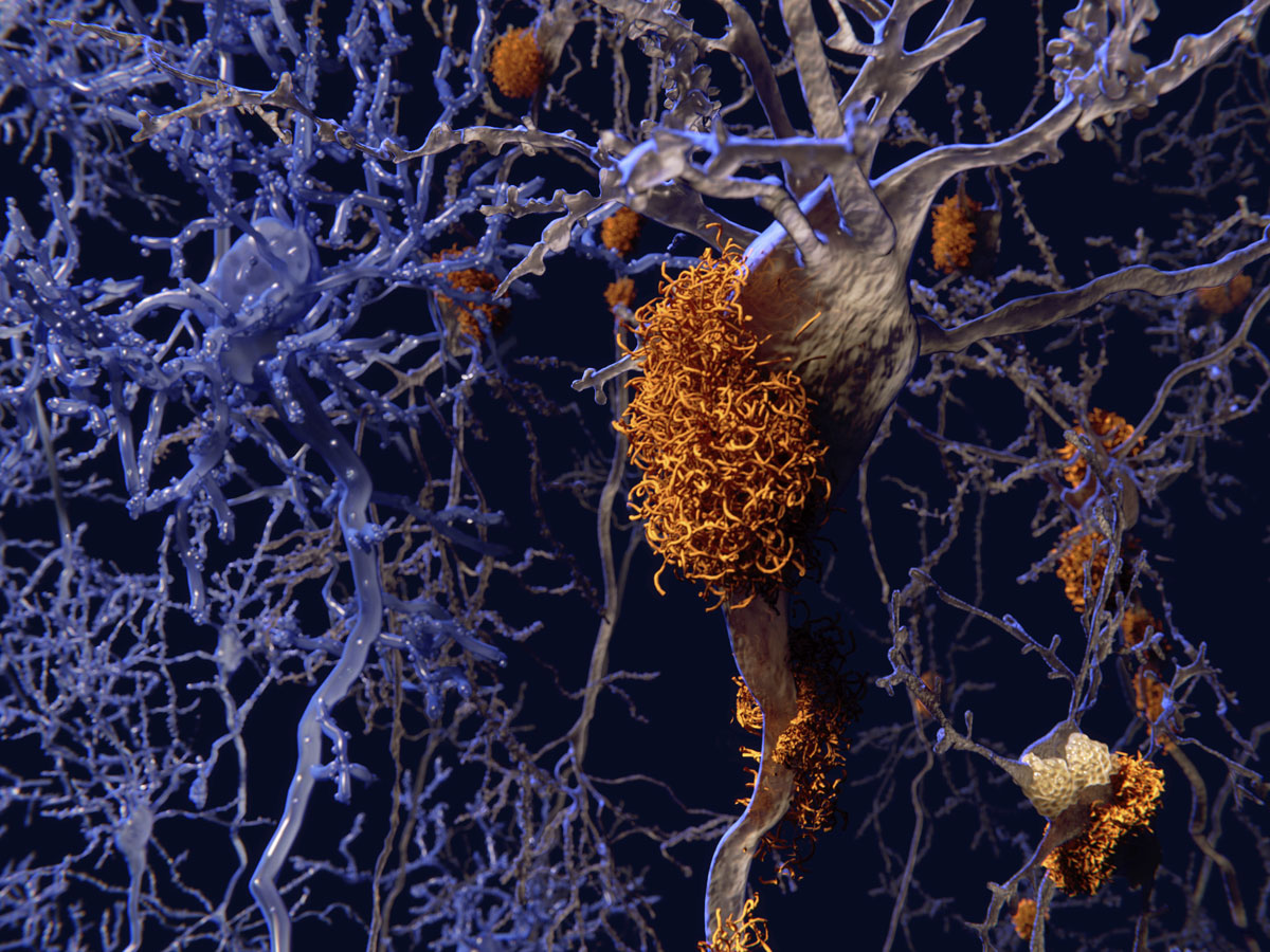 a digital rendering of orange amyloid plaque on blue healthy neurons.