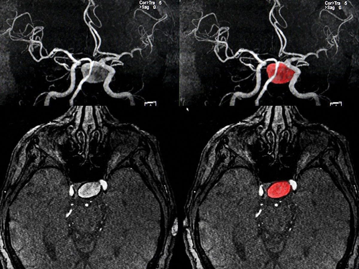 Magnetic resonance image shows a cerebral artery aneurysm.